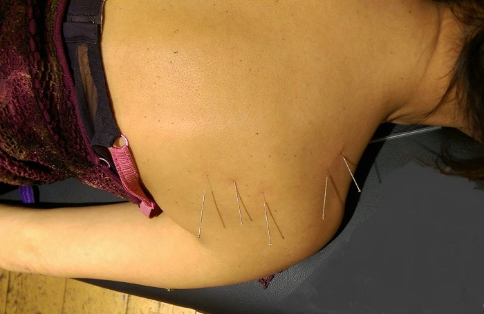 dry needling of the back