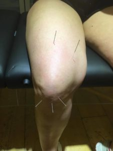 Dry needling of the knee